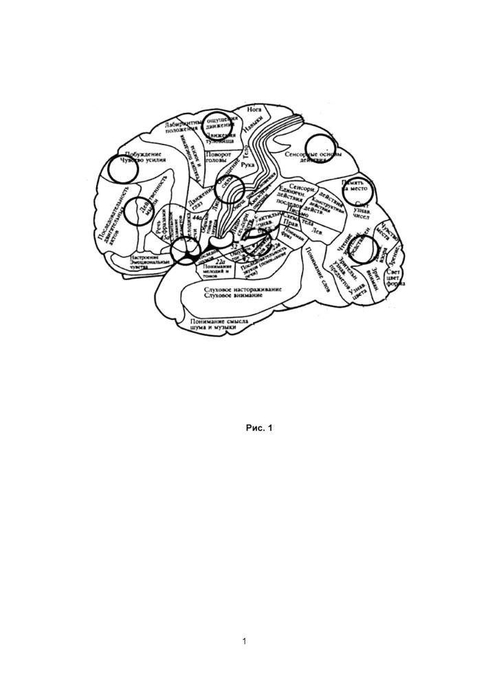 Способ диагностики и коррекции синдрома церебральной гипертермии