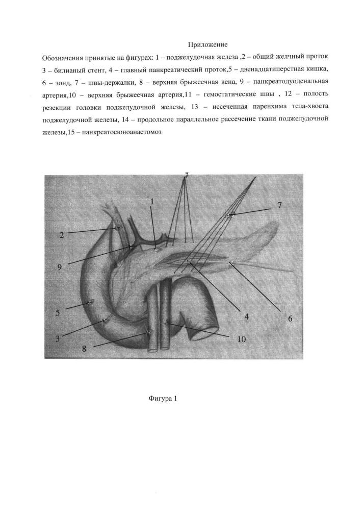 Резекционно-дренирующий способ хирургического лечения хронического кальцифицирующего панкреатита при нерасширенном главном панкреатическом протоке