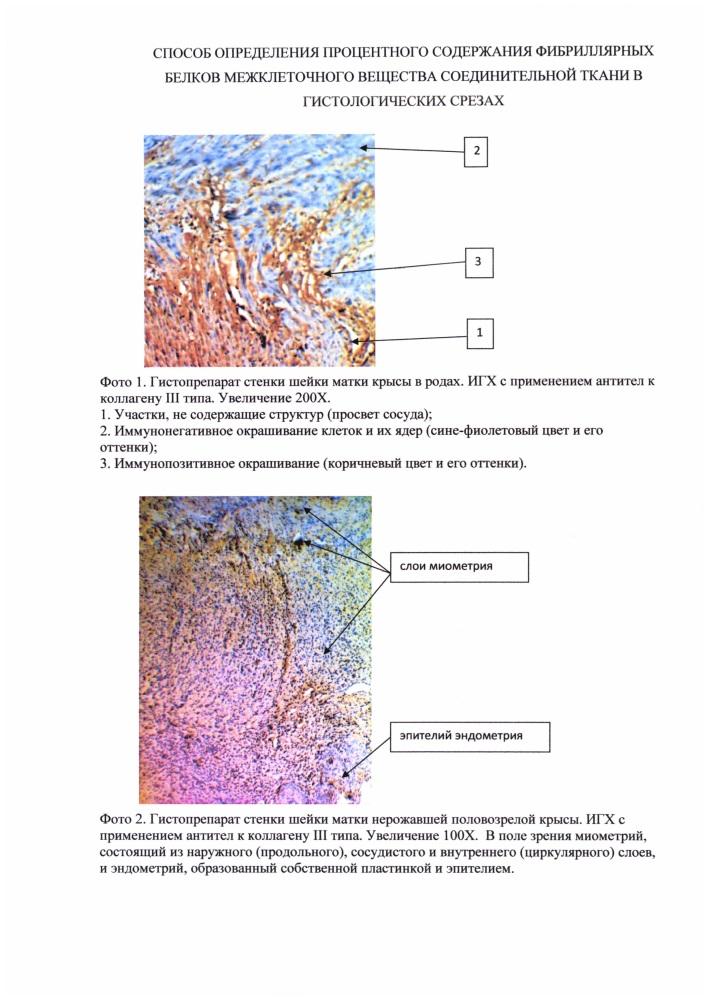 Способ анализа структур межклеточного вещества соединительной ткани в гистологических срезах шейки матки у животных