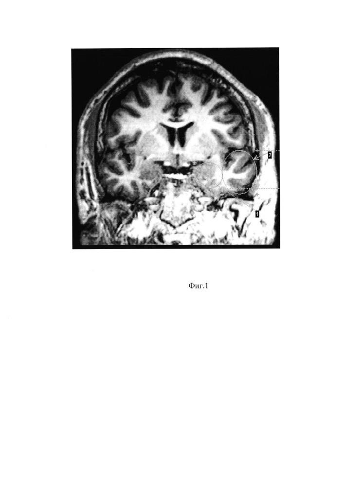 Способ хирургического лечения височной эпилепсии