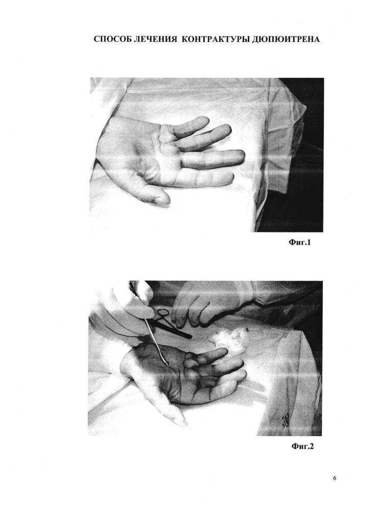 Способ лечения контрактуры дюпюитрена