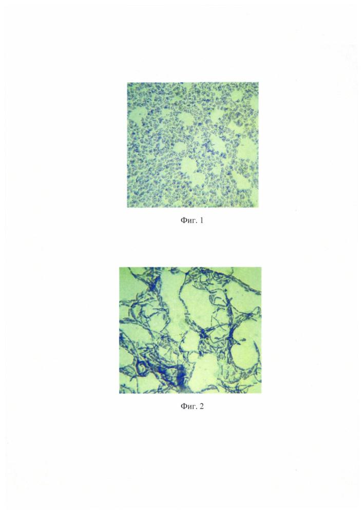 Способ окраски и дифференцировки микроорганизмов