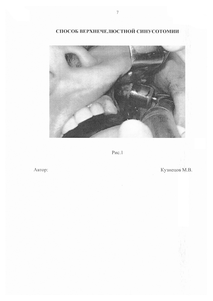 Способ верхнечелюстной синусотомии
