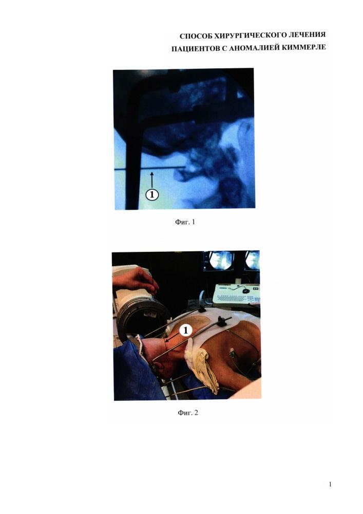 Способ хирургического лечения пациентов с аномалией киммерле