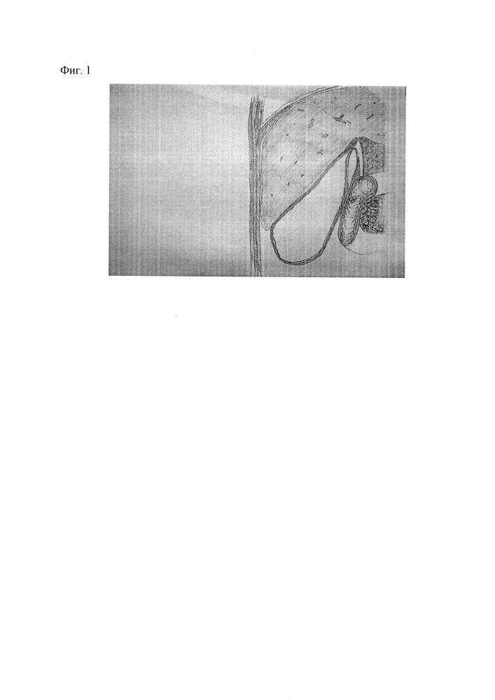 Способ наложения пункционного компрессионного холецистодуоденоанастомоза