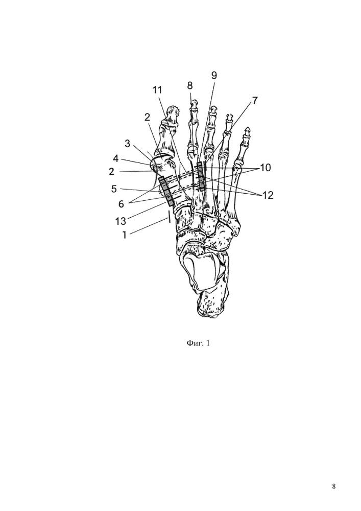 Способ хирургической коррекции поперечной распластанности переднего отдела стопы