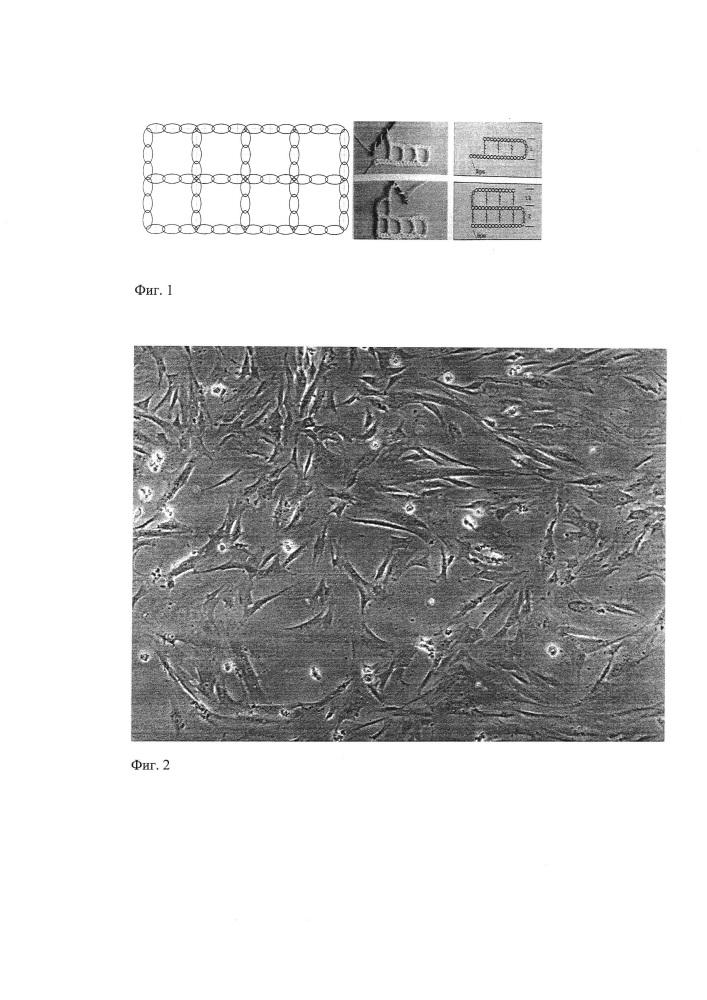 Способ получения биорезорбируемого сетчатого имплантата для пластики стенок малого таза и брюшной полости