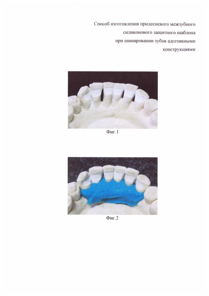 Способ изготовления придесневого межзубного силиконового защитного шаблона при шинировании зубов адгезивными конструкциями