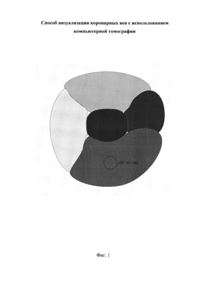 Способ визуализации коронарных вен с использованием компьютерной томографии