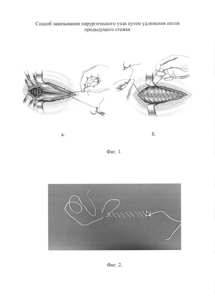 Способ завязывания хирургического узла путем удлинения петли предыдущего стежка