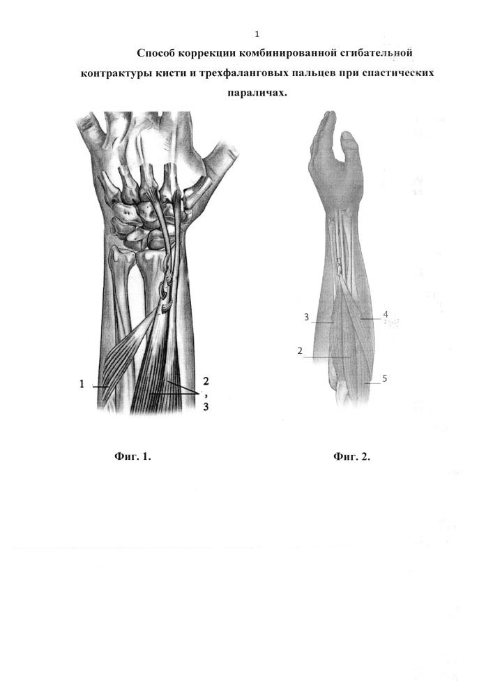 Способ коррекции комбинированной сгибательной контрактуры кисти и трехфаланговых пальцев при спастических параличах