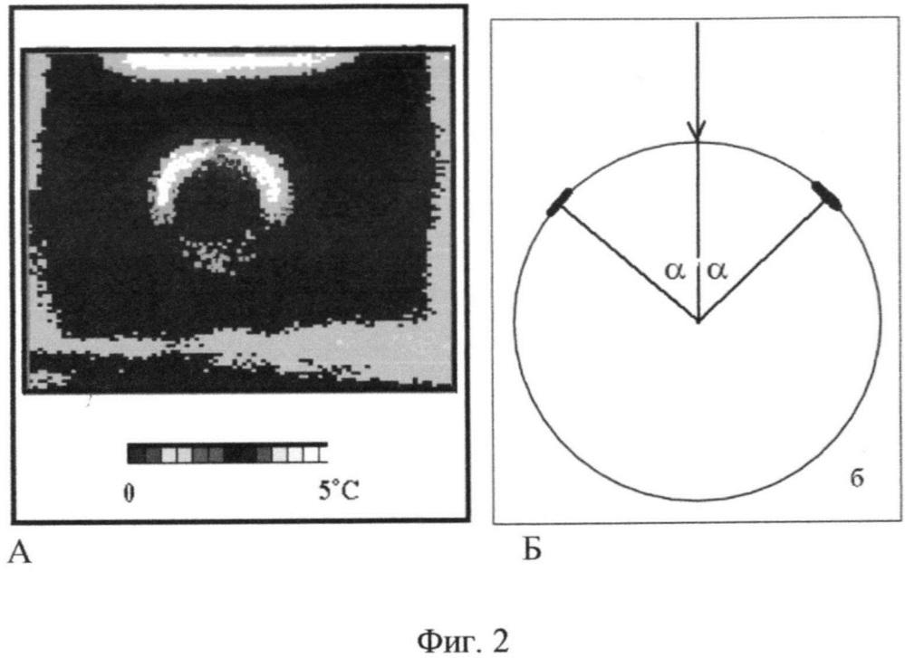 Способ углового ультразвукового контрастирования границ неоднородностей и неоднородностей в биологических тканях при ультразвуковой диагностике