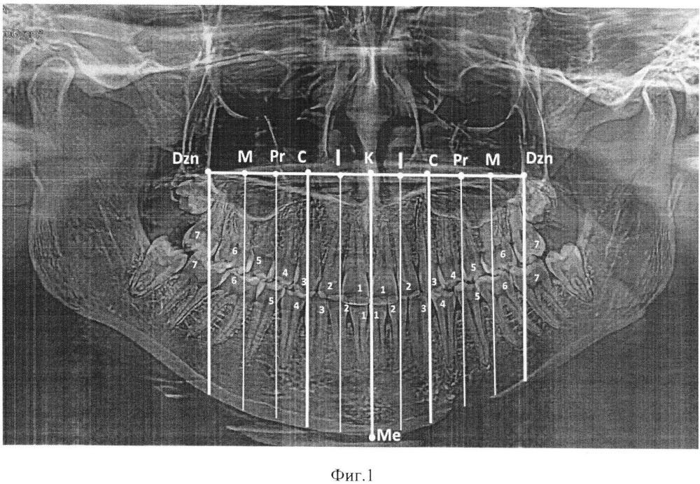 Способ определения положения постоянных зубов на ортопантомограммах челюстей