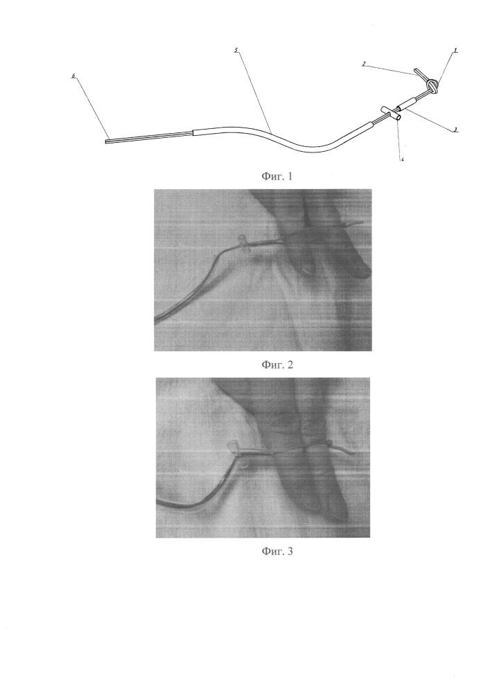 Устройство для лигирования ушка левого предсердия при операциях на сердце