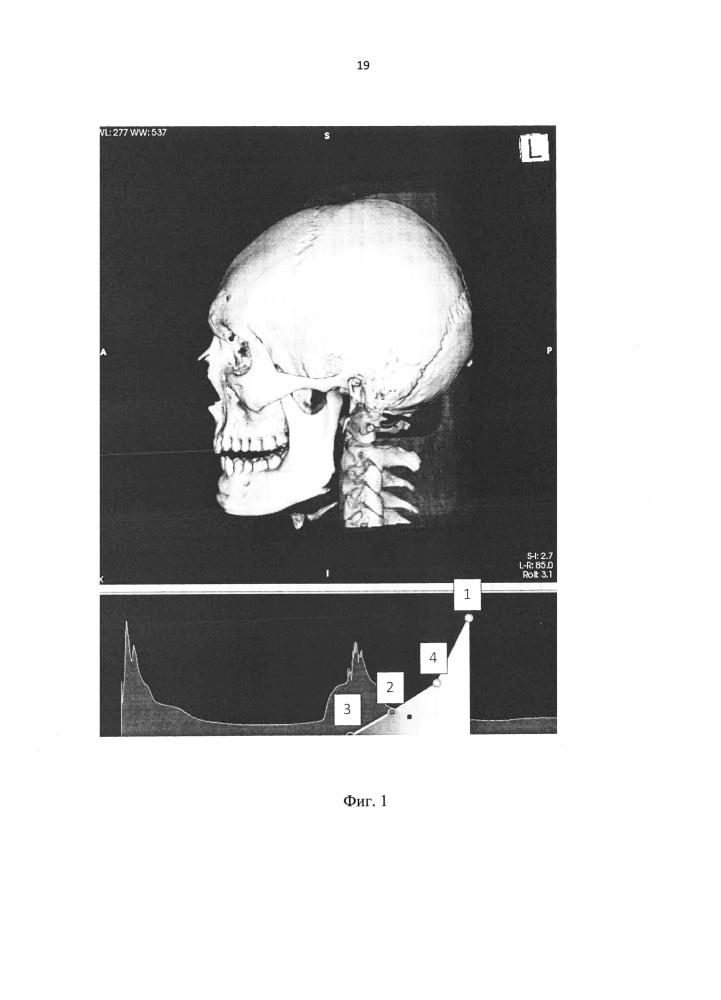 Способ визуализации результата хирургического лечения ювенильных ангиофибром носоглотки и основания черепа