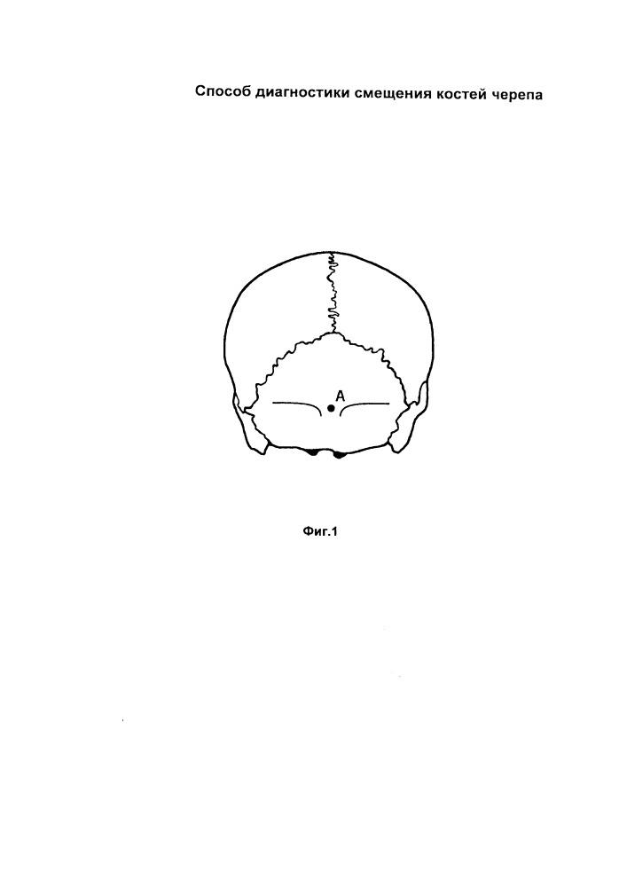 Способ диагностики смещения костей черепа