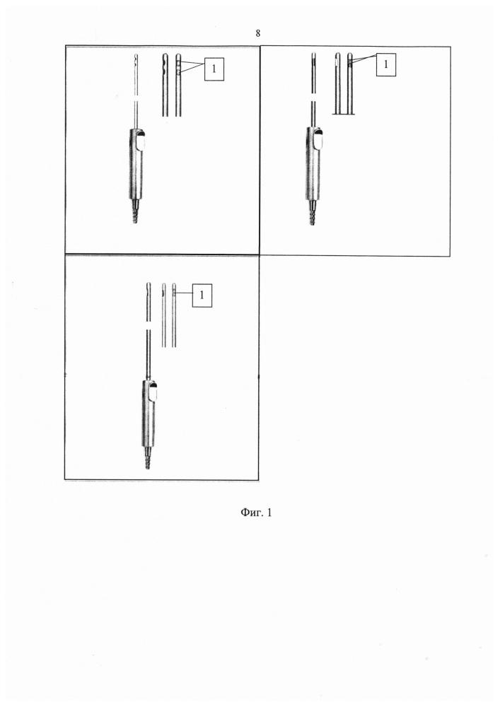 Способ подслизистой конхотомии нижних носовых раковин