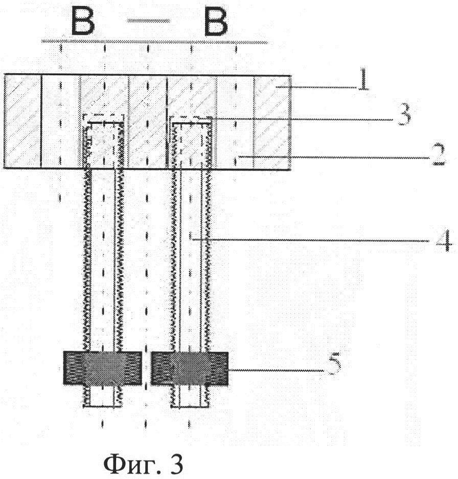 Способ подпазушной аугментации с одновременным устранением адентии