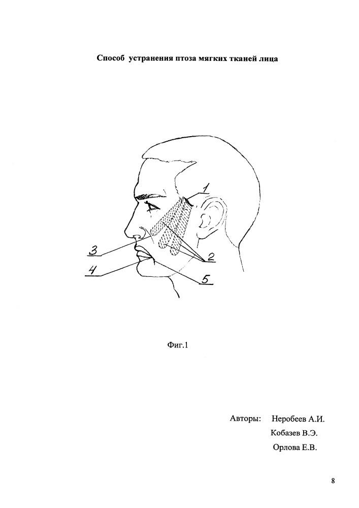 Способ устранения птоза мягких тканей лица