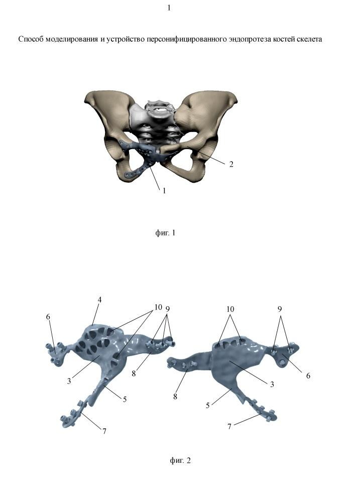 Способ моделирования и устройство персонифицированного эндопротеза костей скелета