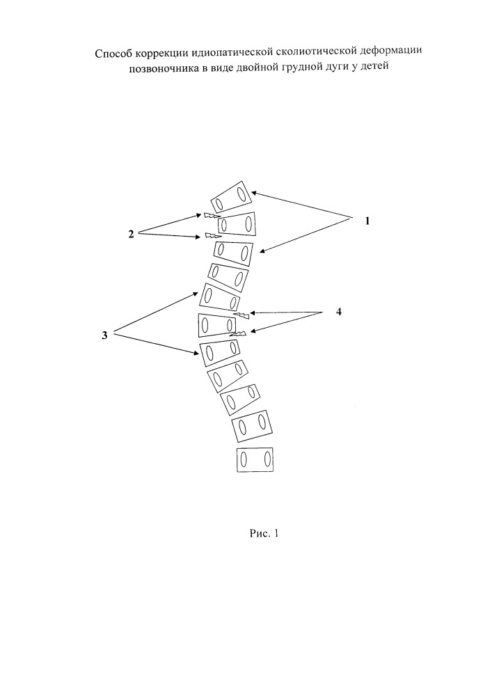 Способ коррекции идиопатической сколиотической деформации позвоночника в виде двойной грудной дуги у детей