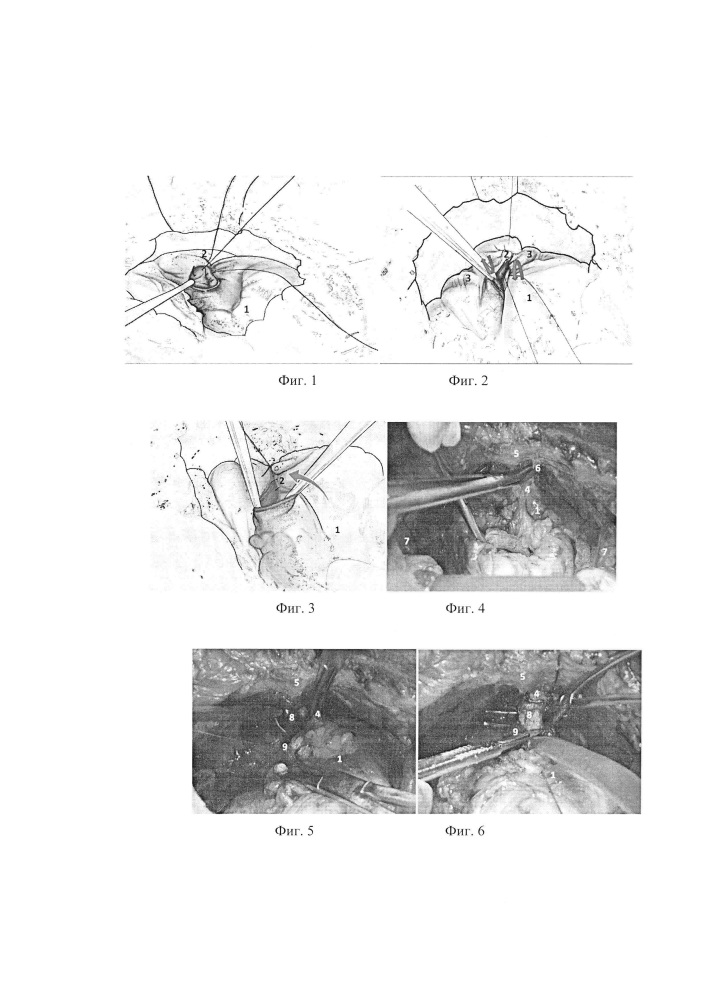 Способ формирования шейки мочевого пузыря при выполнении везико-уретрального анастомоза после позадилонной простатэктомии