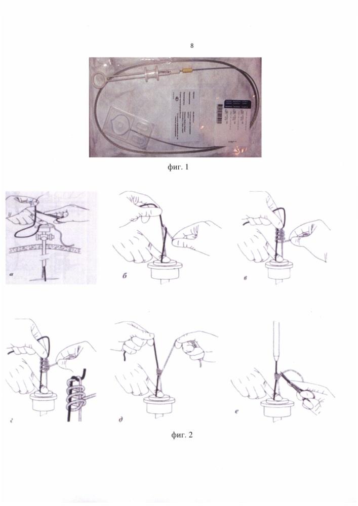 Способ формирования скользящего затягивающегося узла