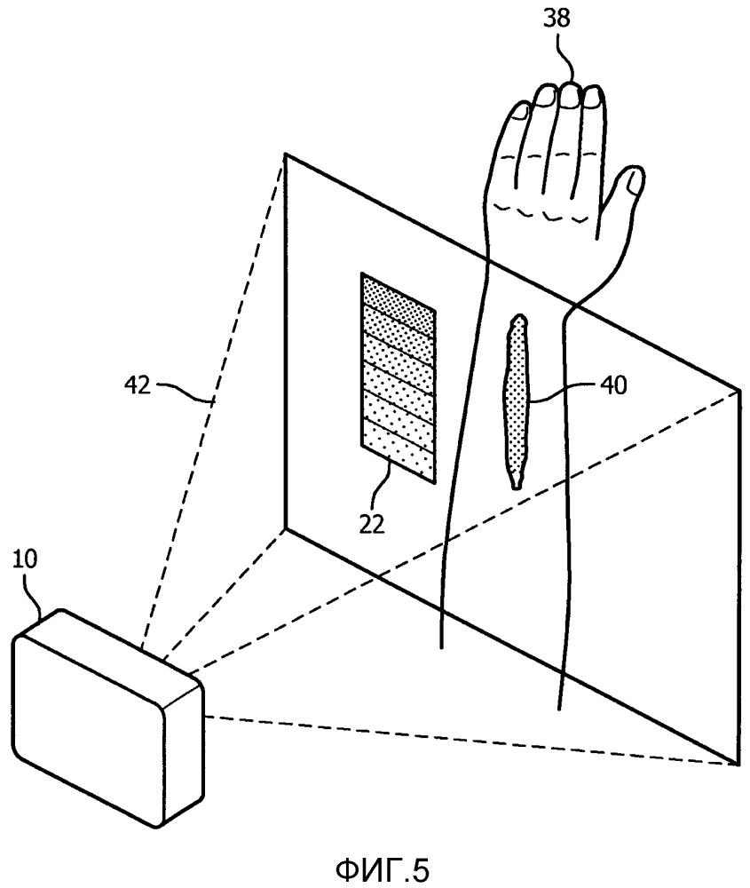 Медицинское устройство или система для измерения уровней гемоглобина во время несчастных случаев, используя систему камера-проектор