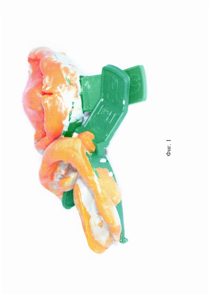 Способ изготовления детской индивидуальной защитной зубной шины (детская капа)