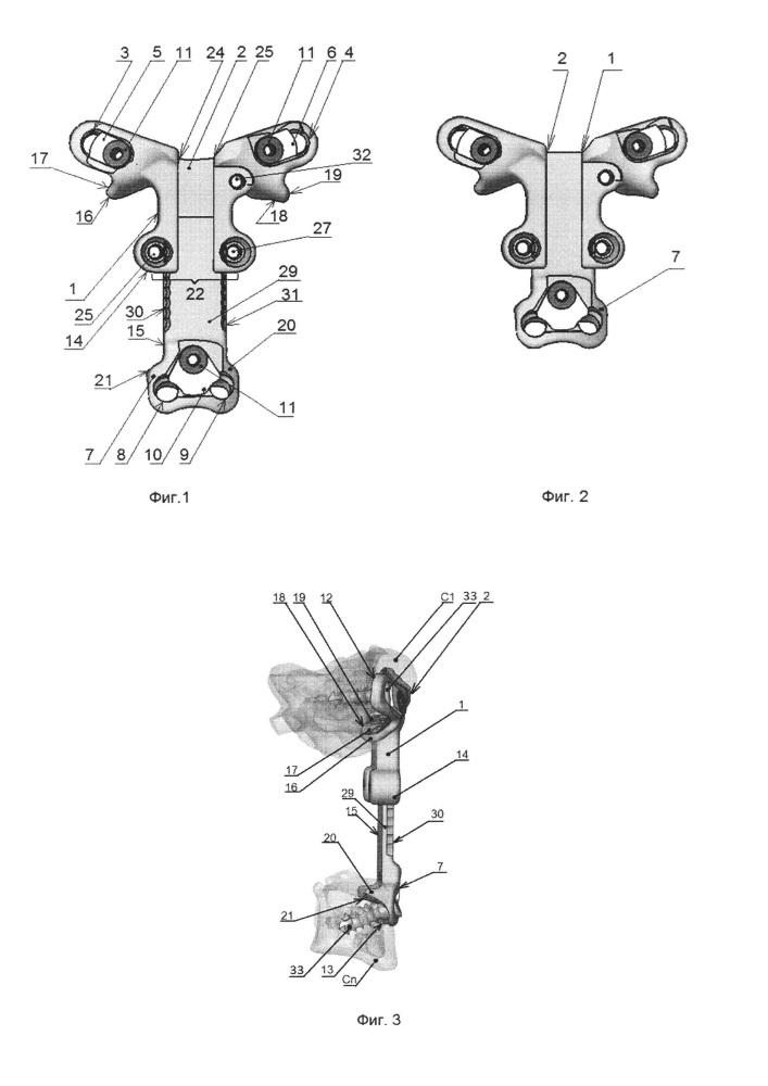 Устройство для передней стабилизации шейных позвонков атланто-субаксиального уровня