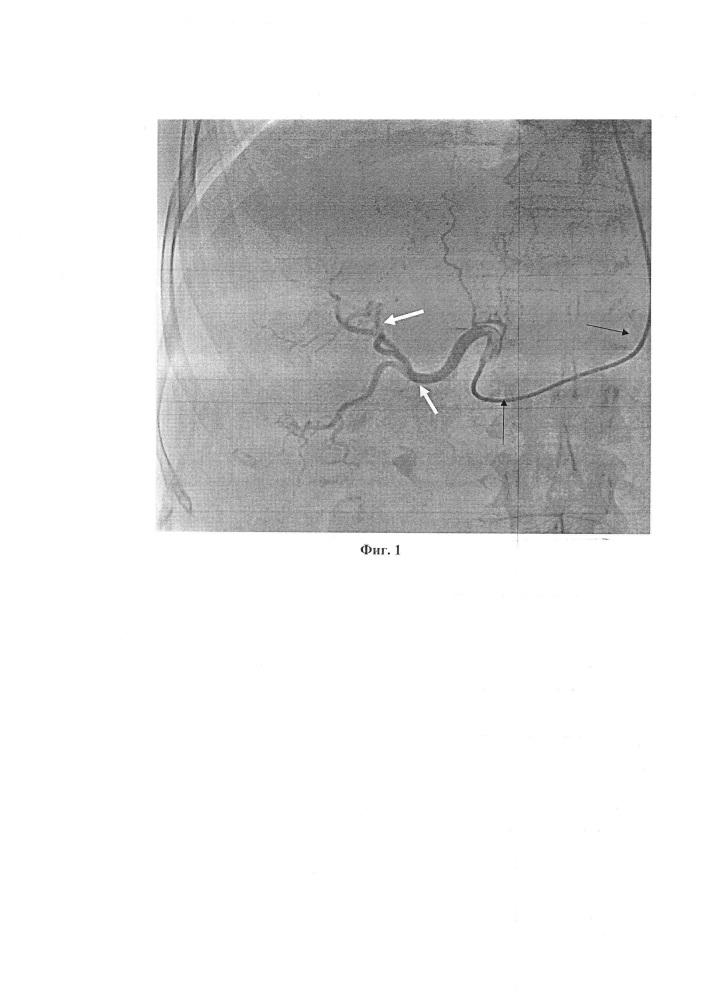 Способ рентгенэндоваскулярной эмболизации висцеральных ветвей через артерии верхних конечностей при помощи катетера headhunter при различных патологиях желудочно-кишечного тракта