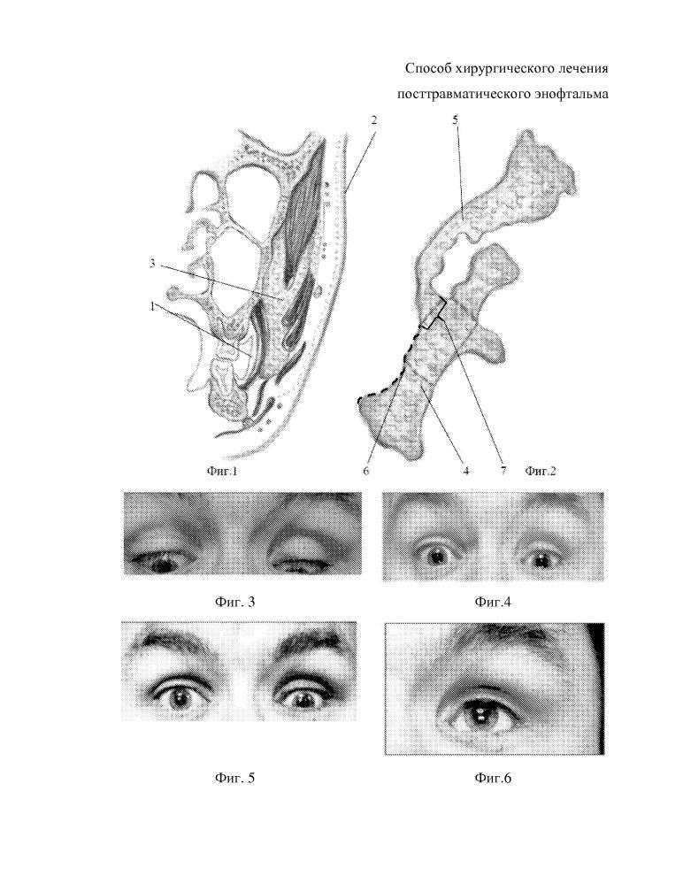 Способ хирургического лечения посттравматического энофтальма