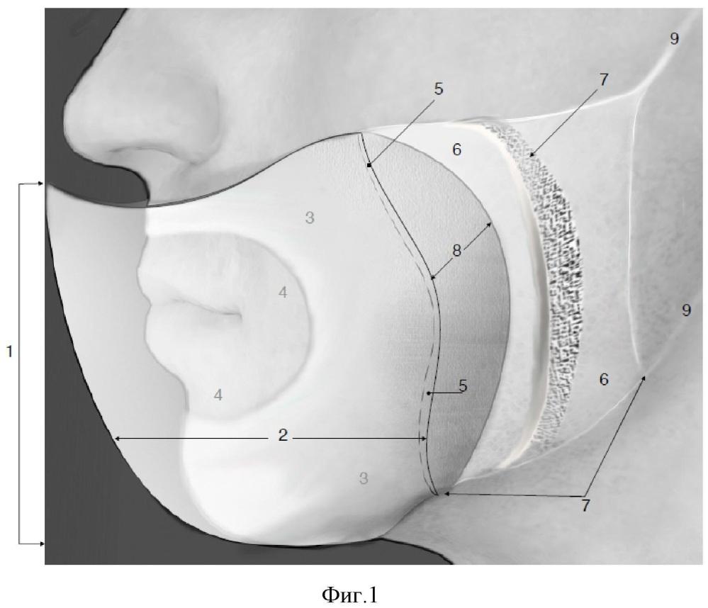 Медицинская маска каркасная барьерно-отводящего типа (варианты)
