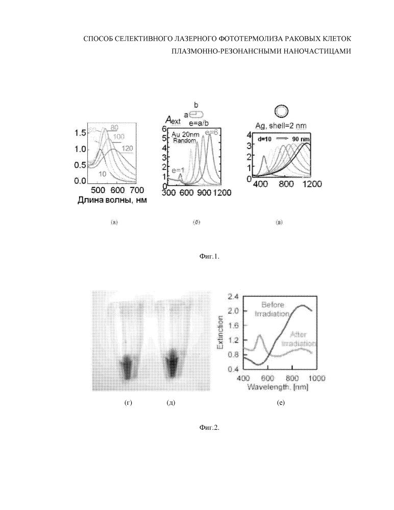 Способ селективного лазерного фототермолиза раковых клеток плазмонно-резонансными наночастицами