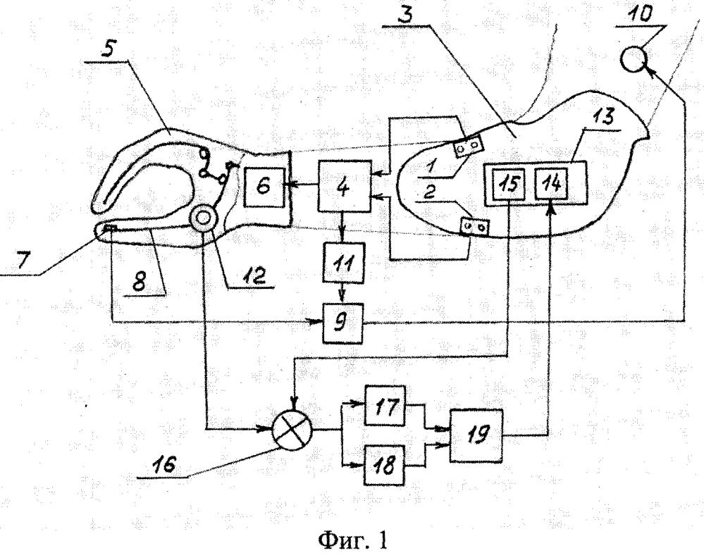 Система управления биоэлектрическим протезом