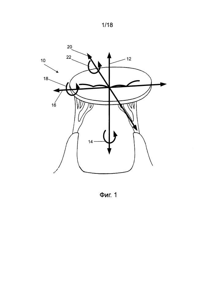 Устройство ориентации для использования при восстановлении митрального клапана