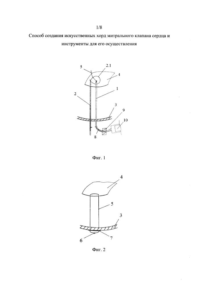 Способ создания искусственных хорд митрального клапана сердца и инструменты для его осуществления