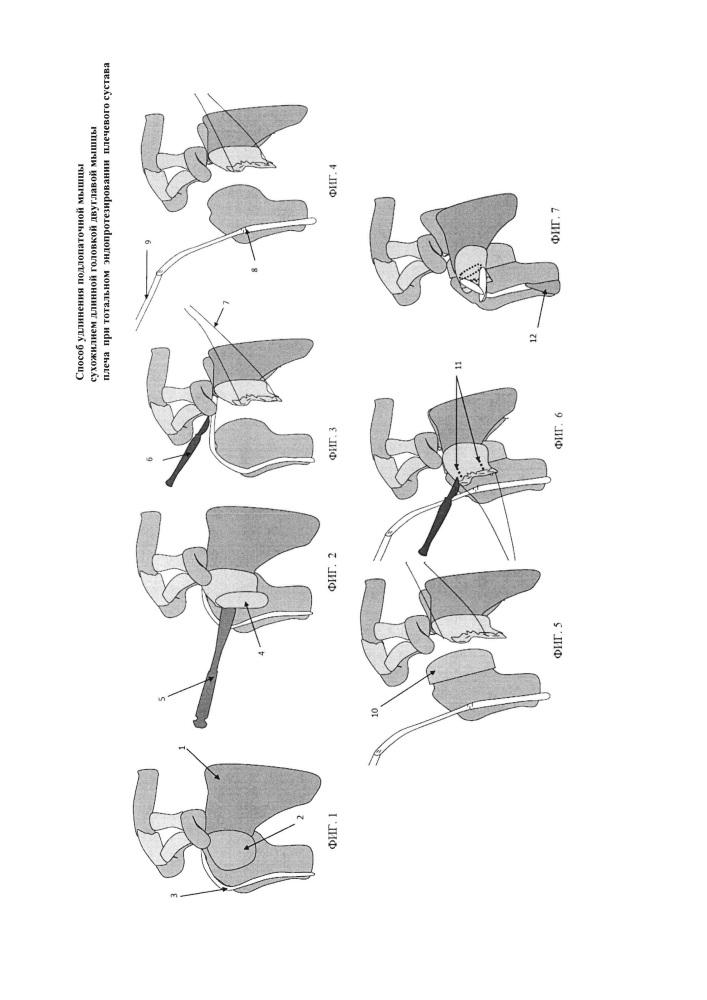 Способ удлинения подлопаточной мышцы сухожилием длинной головки двуглавой мышцы плеча при тотальном эндопротезировании плечевого сустава