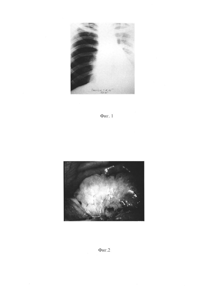 Способ лечения спонтанного пневмоторакса