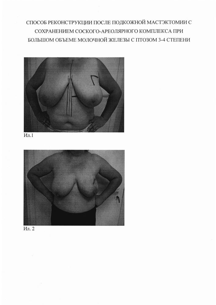 Способ реконструкции после подкожной мастэктомии с сохранением сосково-ареолярного комплекса при большом объеме молочной железы с птозом 3-4 степени