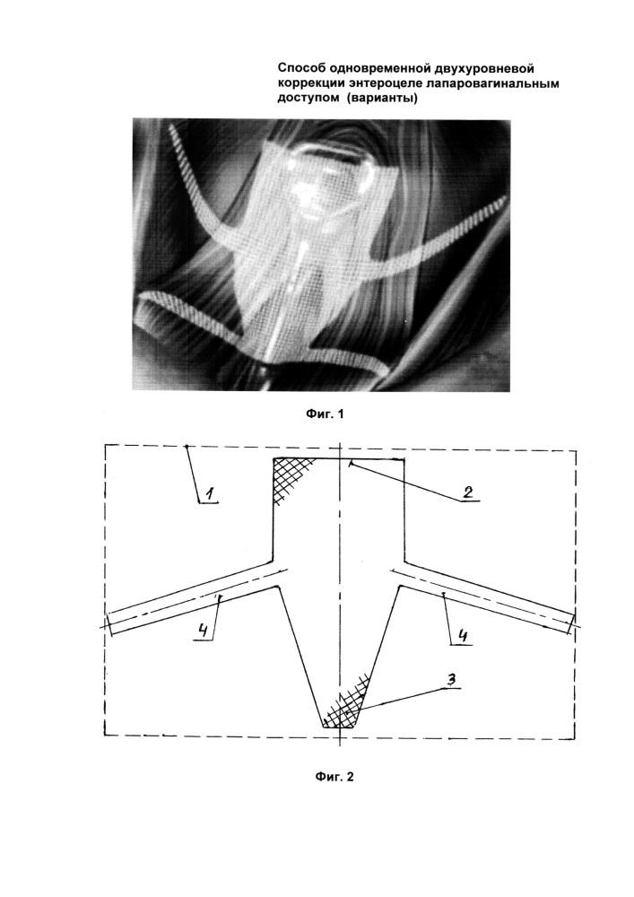 Способ одновременной двухуровневой коррекции энтероцеле лапаровагинальным доступом (варианты)