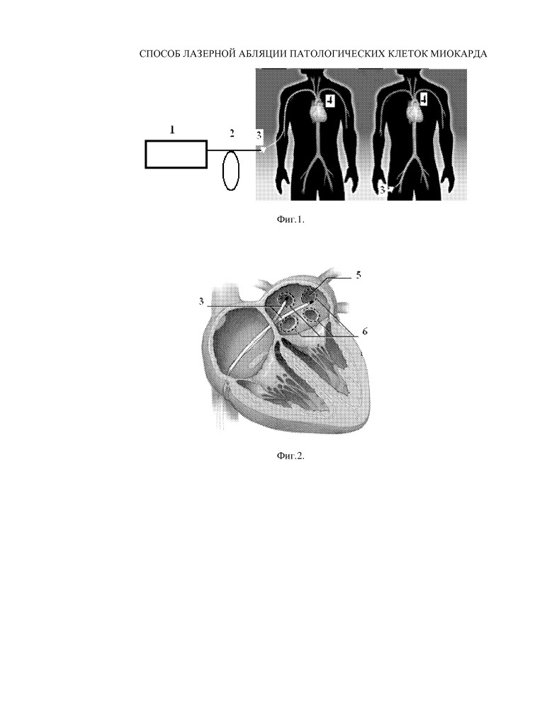 Способ лазерной абляции патологической области сердца