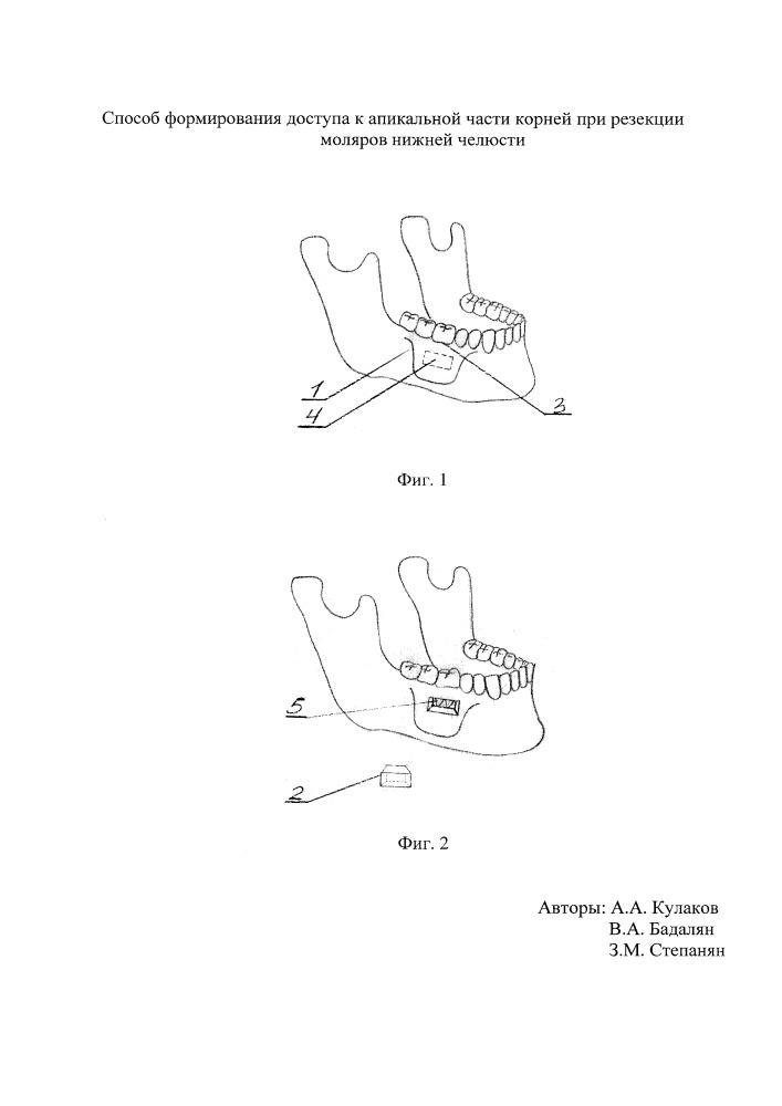 Способ формирования доступа к апикальной части корней при резекции моляров нижней челюсти