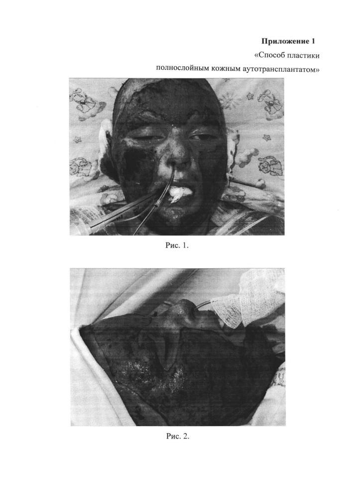 Способ пластики полнослойным кожным аутотрансплантатом