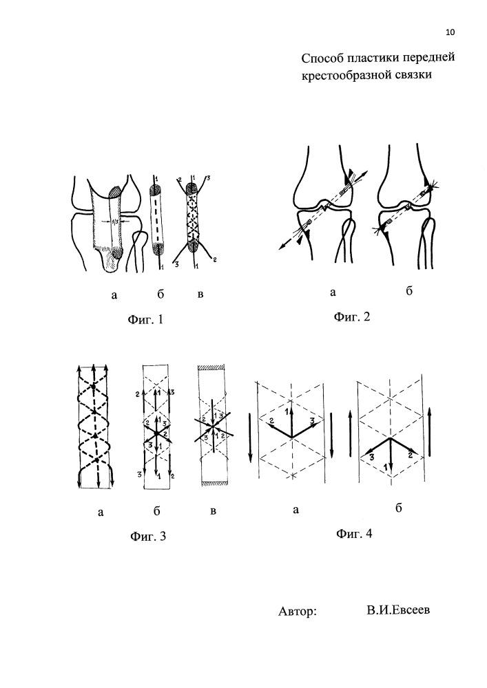 Способ пластики передней крестообразной связки