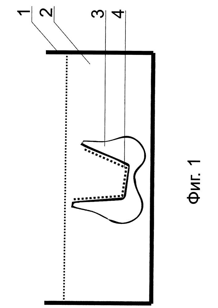 Неводный способ очистки для удаления поверхностных загрязнений с ортопедических конструкций