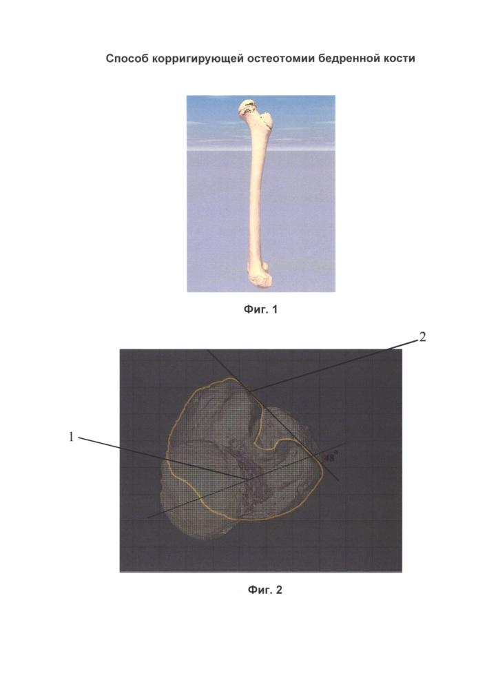 Способ корригирующей остеотомии бедренной кости