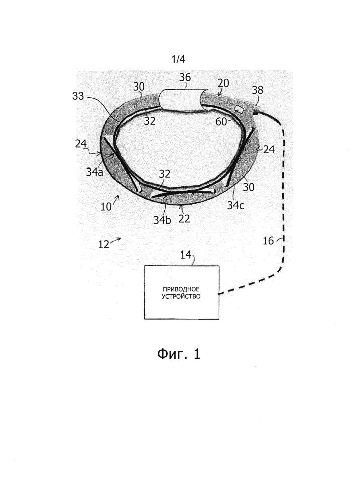 Корректируемое кольцо для аннулопластики и система