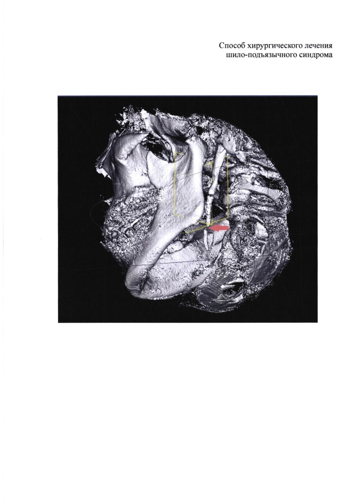 Способ хирургического лечения шило-подъязычного синдрома