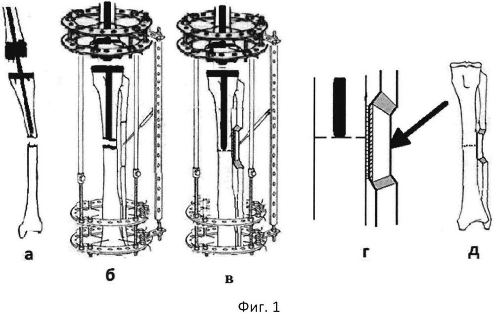 Способ лечения перипротезного перелома большеберцовой кости при остеопорозе